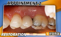3D Implants  Guided Implant Placement 10