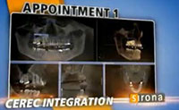 3D Implants  Guided Implant Placement 7
